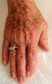 Brown Spots On Hand Before Ipl Treatment At Pampers Escape Beauty Therapy Clinic In Blenheim Marlborough NZ