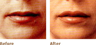 Dermal Filler Treatment At Pampers Escape Beauty Therapy Clinic In Blenheim Marlborough NZ