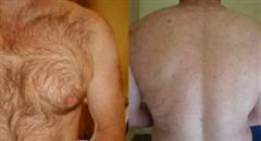 Hair Removal Example At Pampers Escape Beauty Therapy Clinic In Blenheim Marlborough NZ