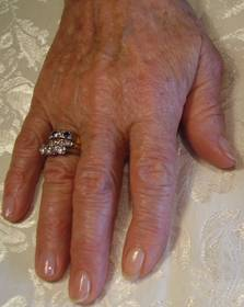 IPL Hand Treatment At Pampers Escape Beauty Therapy Clinic In Blenheim Marlborough NZ