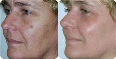 Removal Of Brown Spots Sun At Pampers Escape Beauty Therapy Clinic In Blenheim Marlborough NZ